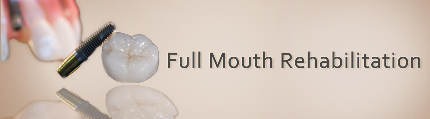full mouth rehabilitation in prabhadevi