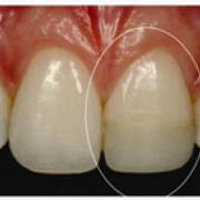 dental implant treatment in bandra